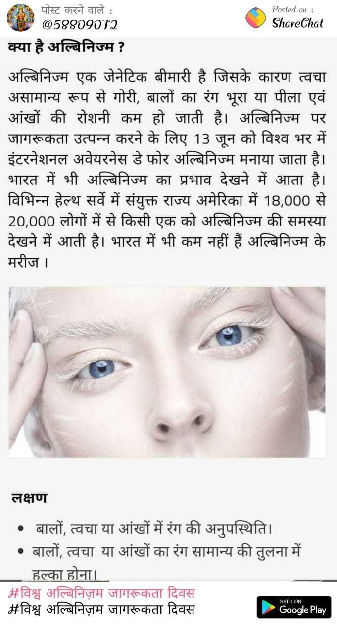 विश्व अल्बिनिज़म जागरूकता दिवस - पोस्ट करने वाले : Posted on : @ 58809072 ShareChat क्या है अल्बिनिज्म ? अल्बिनिज्म एक जेनेटिक बीमारी है जिसके कारण त्वचा असामान्य रूप से गोरी , बालों का रंग भूरा या पीला एवं आंखों की रोशनी कम हो जाती है । अल्बिनिज्म पर जागरूकता उत्पन्न करने के लिए 13 जून को विश्व भर में इंटरनेशनल अवेयरनेस डे फोर अल्बिनिज्म मनाया जाता है । भारत में भी अल्बिनिज्म का प्रभाव देखने में आता है । विभिन्न हेल्थ सर्वे में संयुक्त राज्य अमेरिका में 18 , 000 से 20 , 000 लोगों में से किसी एक को अल्बिनिज्म की समस्या देखने में आती है । भारत में भी कम नहीं हैं अल्बिनिज्म के मरीज । लक्षण • बालों , त्वचा या आंखों में रंग की अनुपस्थिति । • बालों , त्वचा या आंखों का रंग सामान्य की तुलना में हल्का होना । # विश्व अल्बिनिज़म जागरूकता दिवस # विश्व अल्बिनिज़म जागरूकता दिवस GET IT ON Google Play - ShareChat
