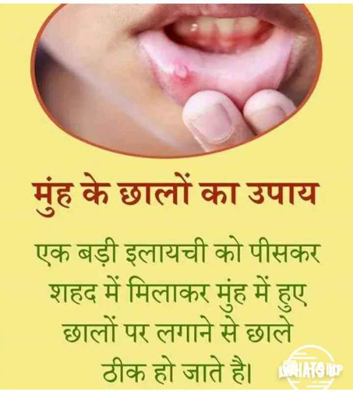 🏃 આરોગ્ય ટિપ્સ - मुंह के छालों का उपाय एक बड़ी इलायची को पीसकर शहद में मिलाकर मुंह में हुए छालों पर लगाने से छाले ठीक हो जाते है । HRS - ShareChat