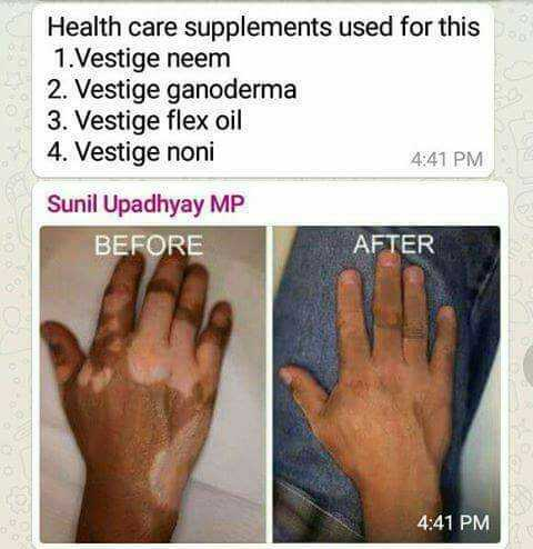 ఆరోగ్యం మహాభాగ్యం - Health care supplements used for this 1 . Vestige neem 2 . Vestige ganoderma 3 . Vestige flex oil 4 . Vestige noni 4 : 41 PM Sunil Upadhyay MP BEFORE AFTER 4 : 41 PM - ShareChat