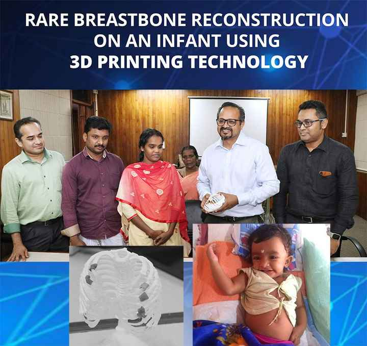 👨‍⚕️ ആരോഗ്യം - RARE BREASTBONE RECONSTRUCTION ON AN INFANT USING 3D PRINTING TECHNOLOGY - ShareChat
