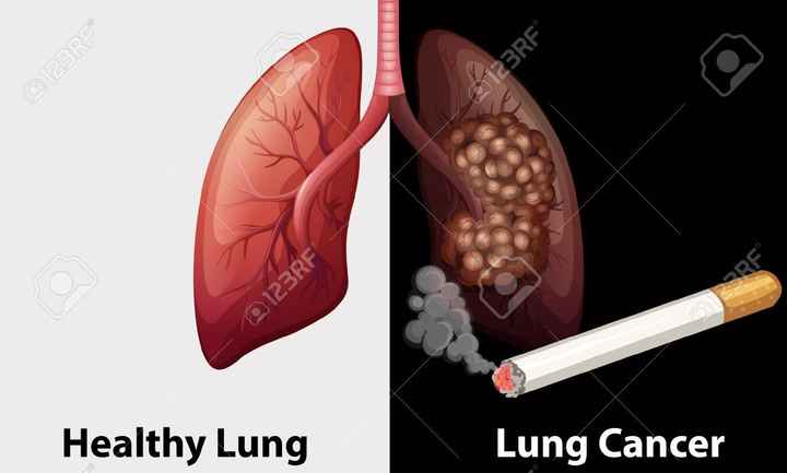 ❌ विश्व तंबाकू निषेध दिवस - @ 123RF M23RF Healthy Lung Lung Cancer - ShareChat