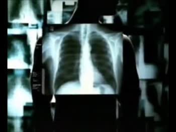 """🚭 సిగిరెట్ తాగకు """"పోతావ్"""" - SKYWARDS Electronic Cigarette [ No Tobacco , No Tar ] - ShareChat"""